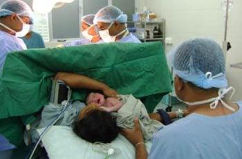 operasi sesar